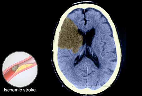An Ischemic Stroke